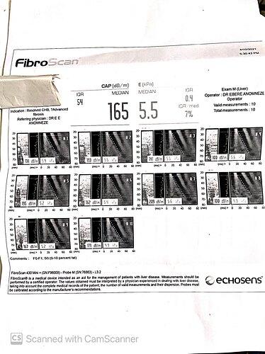 174.Fibroscann