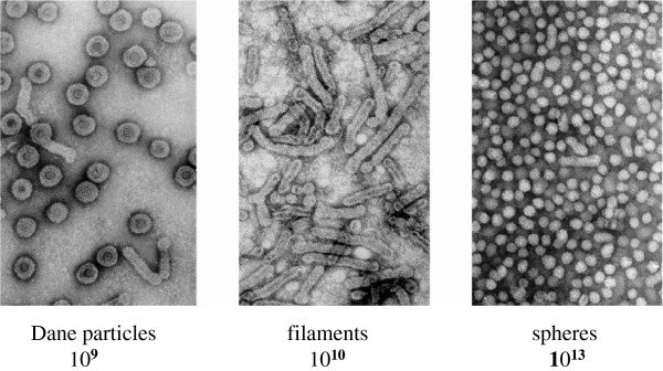 Electron-microscopy-images-negative-staining-and-approximate-numbers-of-HBV-associated_W640